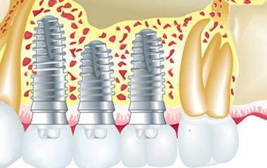 Schéma résultat chirurgie dentaire