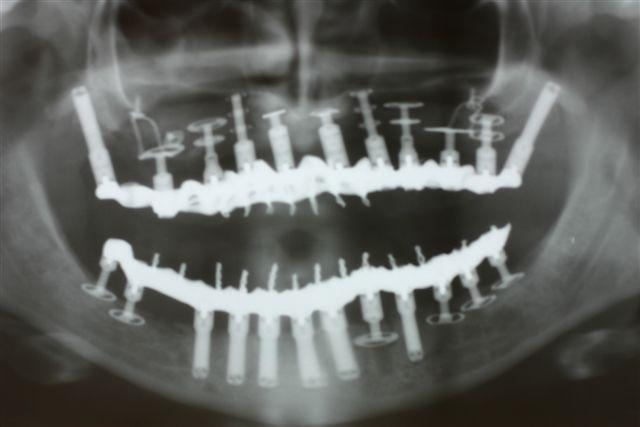 Implantologie-basale